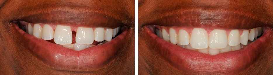 Before and after case three study of a person with invisalign
