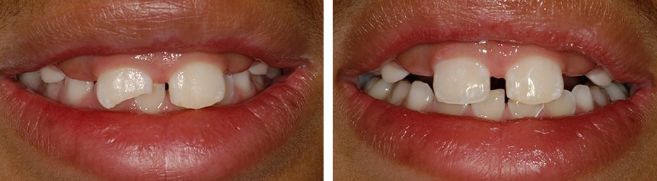 Before and after case one study of a person with dental bonding