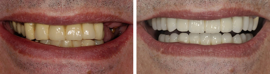 Before and after case seven study of a person with Implant crowns