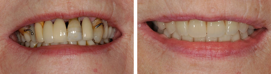 Before and after case six study of a person with dentures