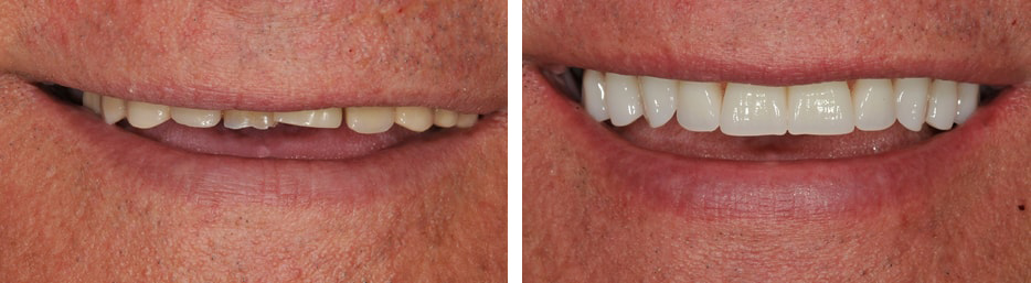 Before and after case three study of a person with dentures