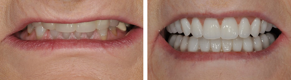 Before and after case four study of a person with dentures