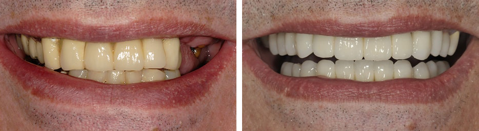 Case study of a patient's before and after dental implants