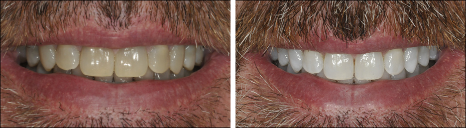 Before and after case study of a person after teeth whitening
