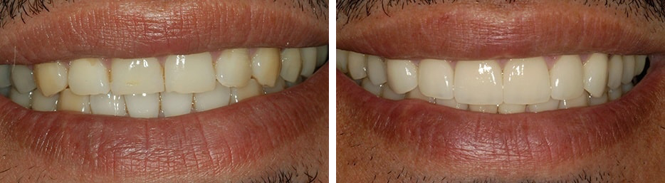 A before and after case study of a patient after a cosmetic procedure