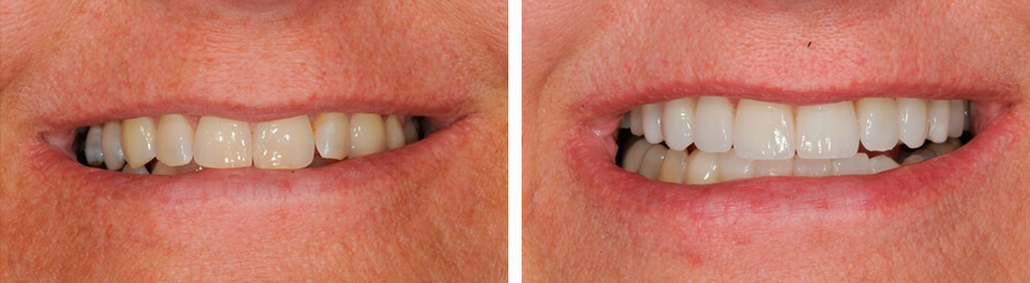 Before and after case one study of a person with porcelain veneers