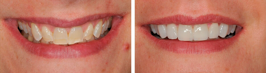 Before and after case three study of a person with porcelain veneers