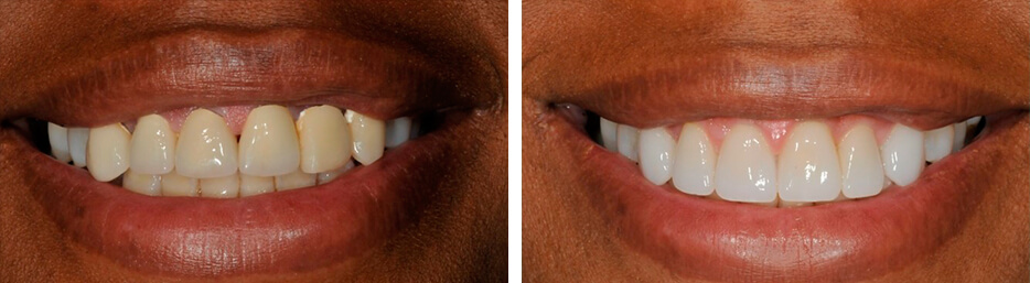 Before and after case three study of a person with crowns and bridges
