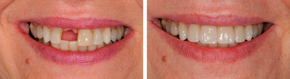 Before and after case three study of a person with Implant crowns