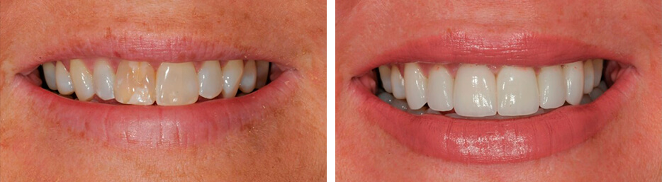 Before and after case four study of a person with porcelain veneers