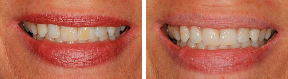 Before and after case two study of a person with dental bonding