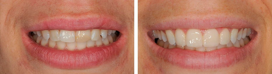 Before and after case five study of a person with porcelain veneers
