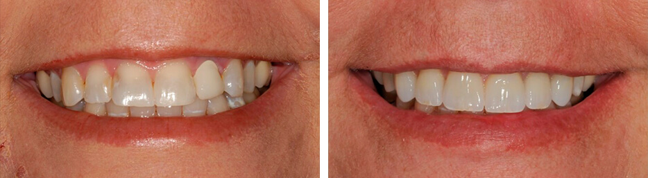 Before and after case two study of a person with crowns and bridges