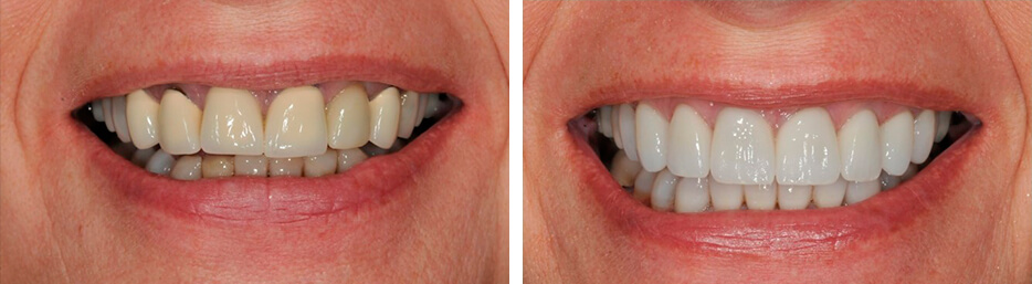 Before and after case one study of a person with crowns and bridges