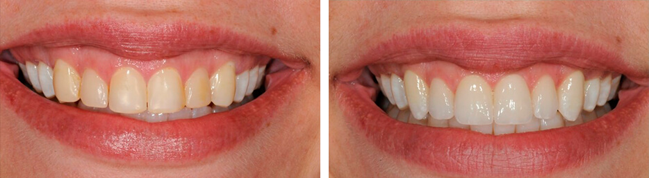 Before and after case ten study of a person with porcelain veneers