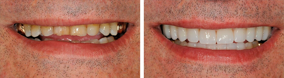 Before and after case one study of a person after a full mouth reconstruction