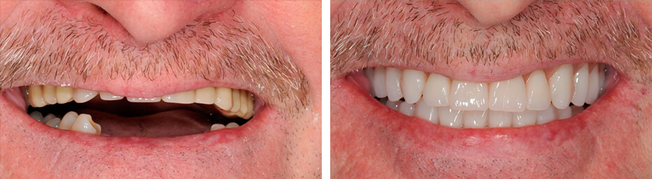 Before and after case two study of a person with dentures