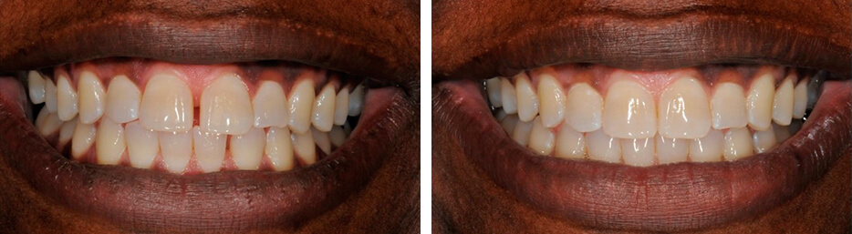 Before and after case one study of a person with invisalign