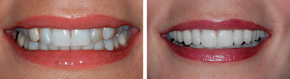Before and after case six study of a person with porcelain veneers