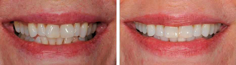 Before and after case two study of a person with invisalign