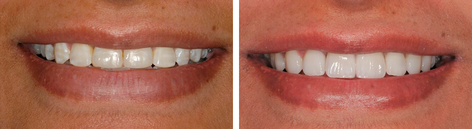 Before and after case seven study of a person with porcelain veneers