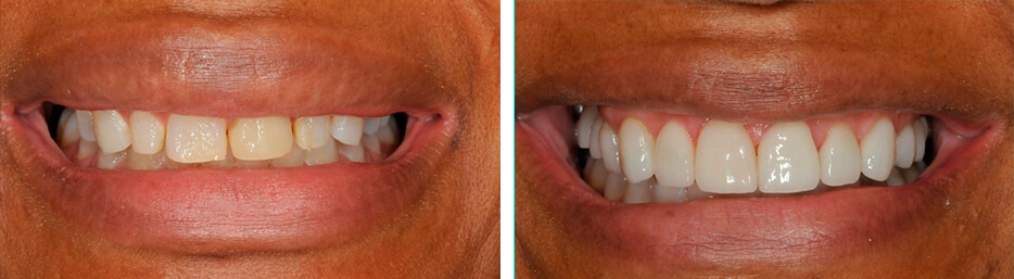 Before and after case one study of a person with Implant crowns