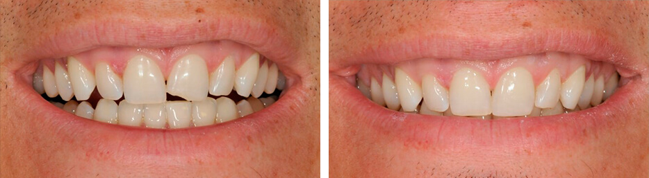 Before and after case three study of a person with dental bonding