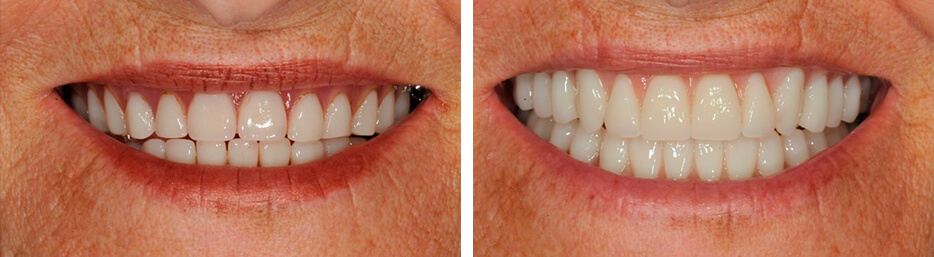Before and after case five study of a person with dentures