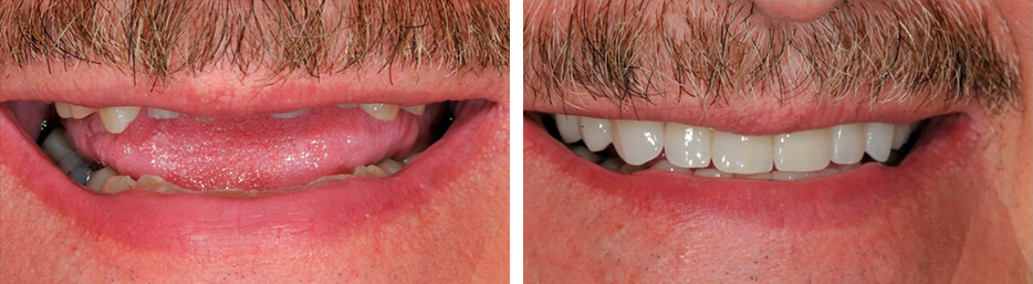 Before and after case three study of a person after a full mouth reconstruction