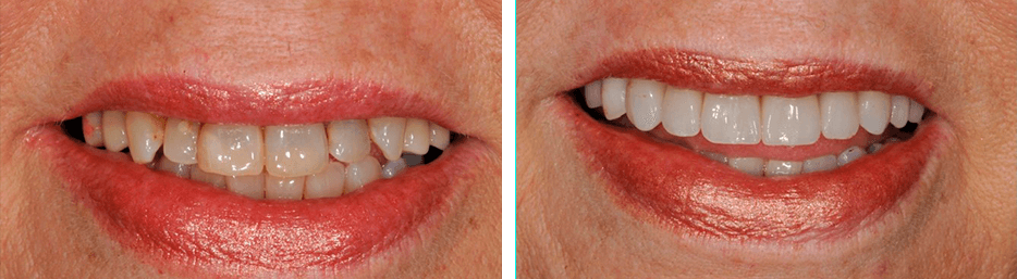Before and after case five study of a person with crowns and bridges