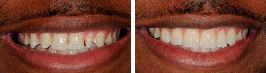 Before and after case eight study of a person with porcelain veneers