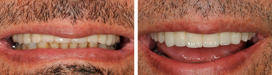Before and after case four study of a person with Implant crowns