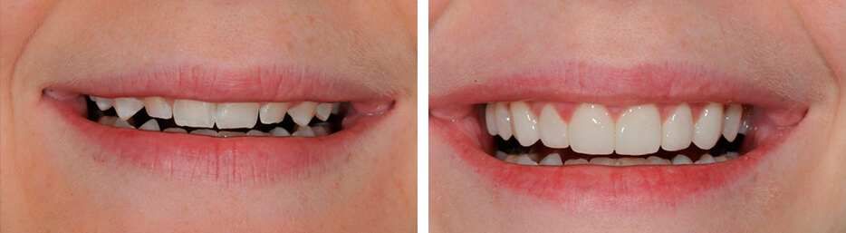 Before and after case eleven study of a person with porcelain veneers