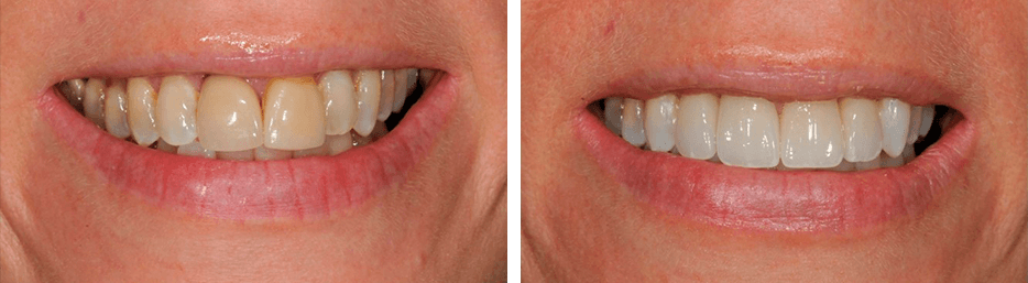 Before and after case six study of a person with crowns and bridges