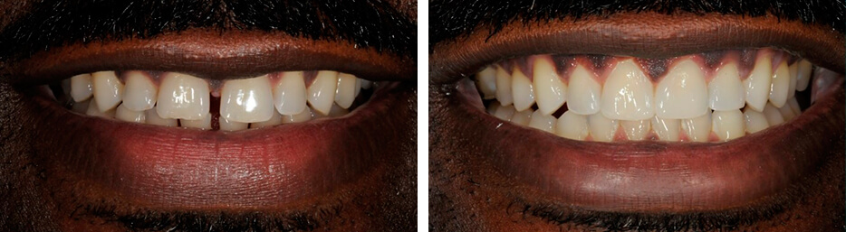 Before and after case four study of a person with invisalign
