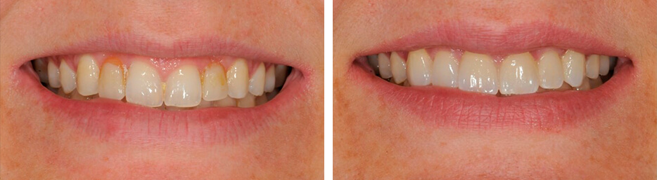 Before and after case eleven study of a person with crowns and bridges