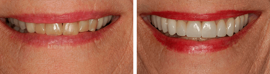 Before and after case eight study of a person with crowns and bridges