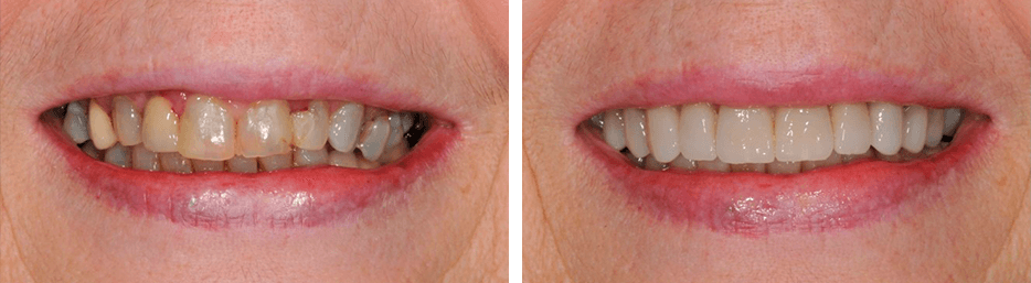 Before and after case nine study of a person with crowns and bridges