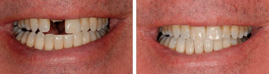 Before and after case ten study of a person with crowns and bridges