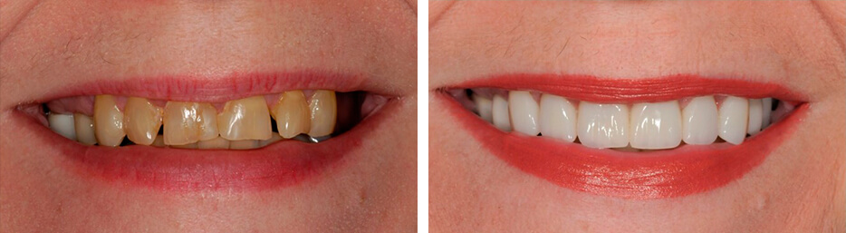 Before and after case six study of a person with Implant crowns