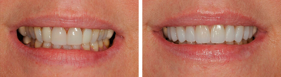 Before and after case two study of a person with porcelain veneers
