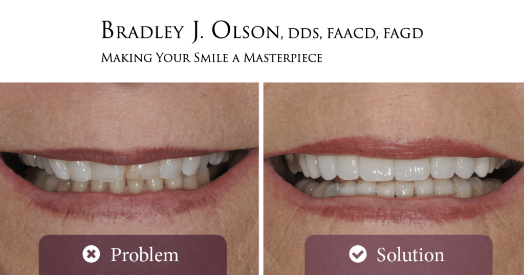 Compare Mrs. Adcock's smile before and after her smile makeover with Dr. Bradley Olson!