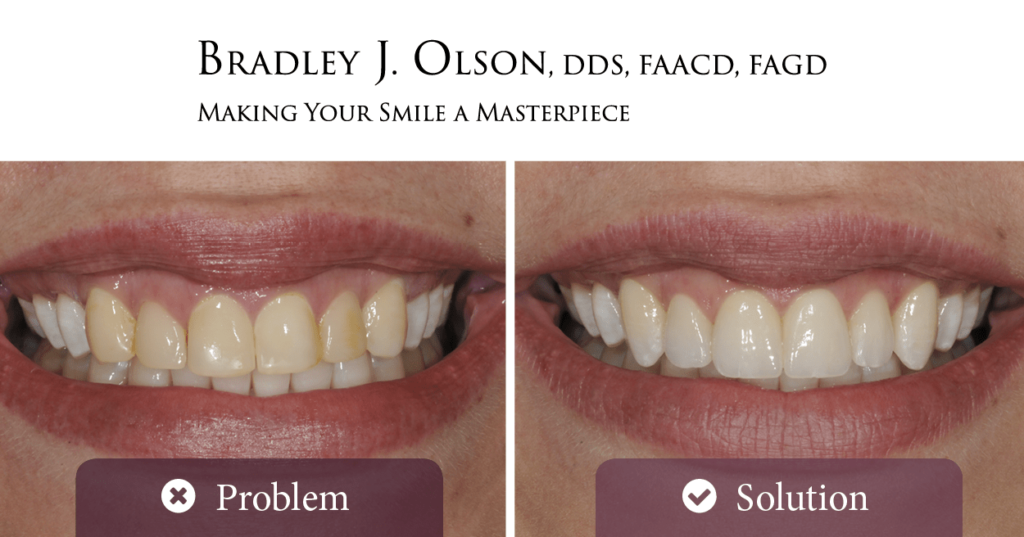 Ms. Baker's smile before and after her smile makeover with Dr. Bradley Olson in Waldorf!