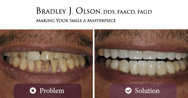 Older man before and after smile makeovers with Dr. Bradley Olson, cosmetic dentist in Waldorf!