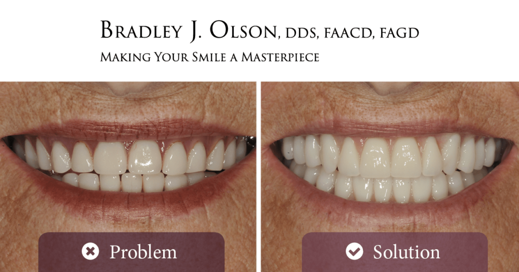 Older female before and after smile makeovers with Dr. Bradley Olson, cosmetic dentist in Waldorf!