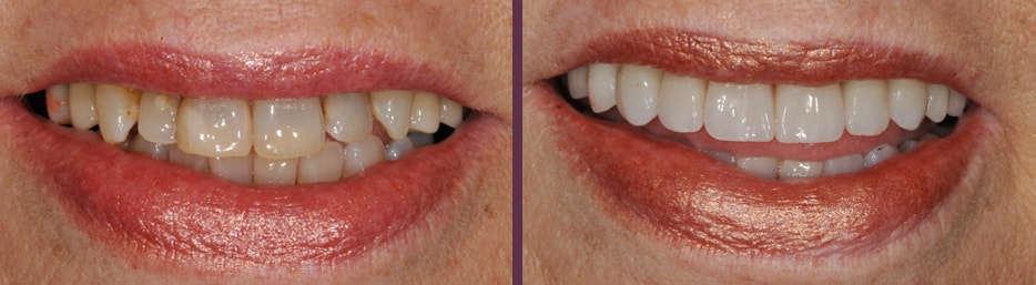 Dental crown work before and after with patient who also got a dental implant with dentist Dr. Olson in Waldorf, MD