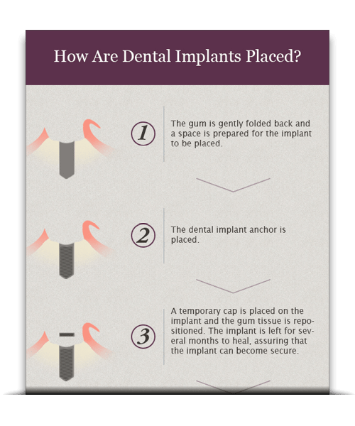A preview of our free infographic titled How Are Dental Implants Placed?