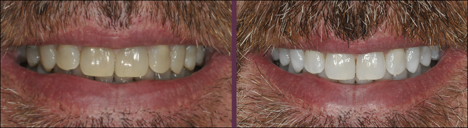 A case study showing an actual patient of Dr. Olson's smile before and after receiving teeth whitening treatment