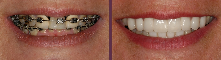 Incredible transformation and restoration of the smile's appeacane and function in this before and after of our patient's dental crown work with Dr. Olson