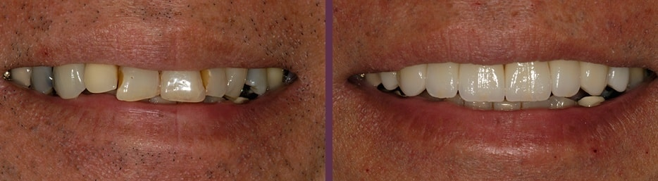 An actual patient before and after receiving porcelain crowns at our Waldorf dental office.
